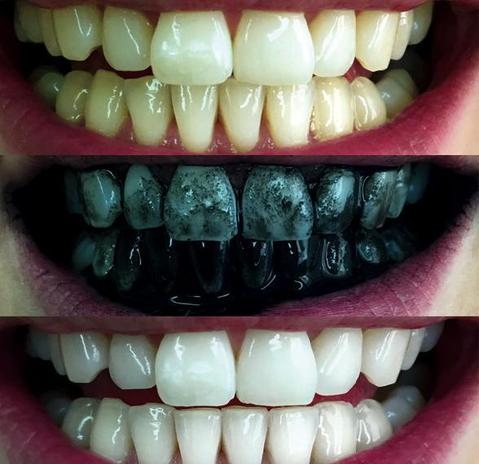 Activated Charcoal Teeth Whitening Powder Highway Importers Online